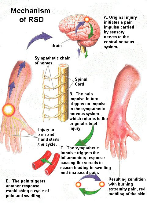 RSd complex regional pain syndrome disability claim