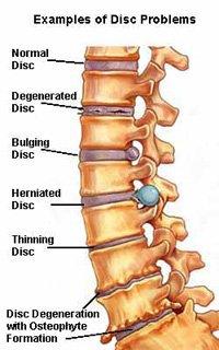 back disorder disability benefits claim