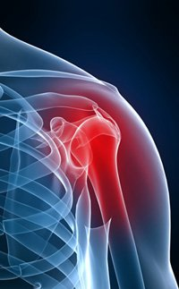 shoulder disorder disability benefits claim