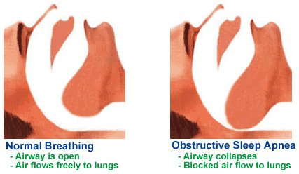 sleep apnea have what is known as complex sleep apnea