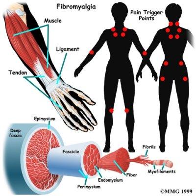arthritis_fibromyalgia
